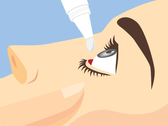 Dry eye treatment in Chicago